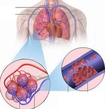Tắc động mạch phổi