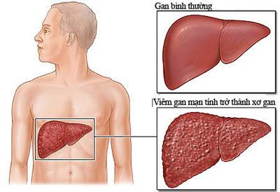 Tìm hiểu về căn bệnh xơ gan