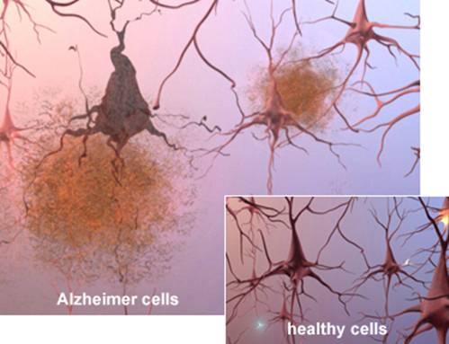 benh- Alzheimer