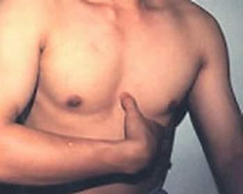 cc5huyetdantrung Bấm huyệt hỗ trợ phòng trị nhịp tim chậm