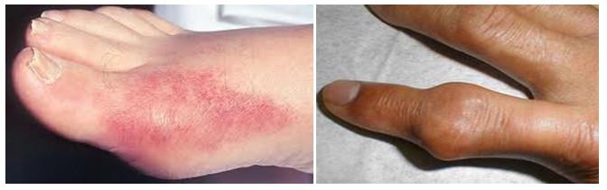 triệu chứng cơn gout cấp