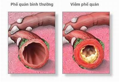viemphequan021 Bệnh viêm phế quản mạn tính